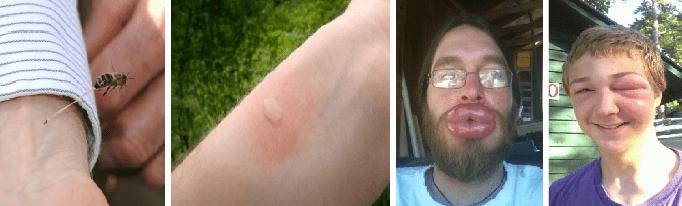 Piqûre d'abeille: les bons réflexes