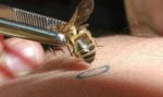 Les produits de la ruche: le venin